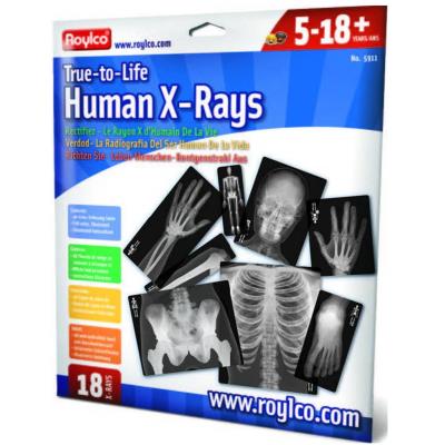 Radiographies : Os
